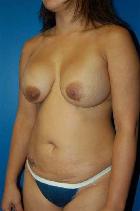 moderate ptosis with breast augmentation photos jpg 498x750