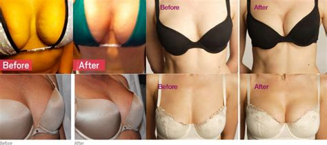 Is it possible to naturally lift breasts doctor answers, tips jpg 1289x573