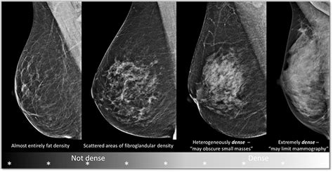 Breast cancer screening pdqpatient version national jpg 700x362